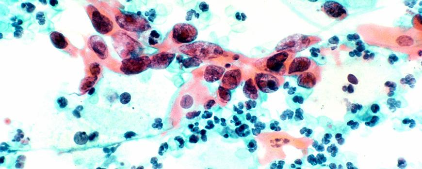 citología mostrando cáncer de cervix