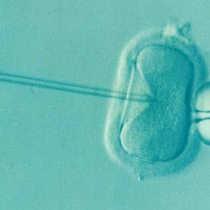 MINI-FIV O FIV SUAVE, la fecundación in vitro más ligera